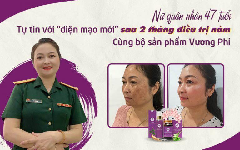 Thiếu tá Tạ Thị Vân đã điều trị nám lâu năm thành công sau 1 liệu trình y học cổ truyền