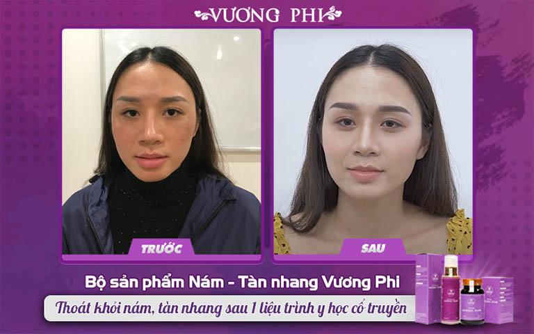 Chị Thu Hương (30 tuổi) đã điều trị dứt điểm nám, tàn nhang nhờ Bộ sản phẩm Vương Phi