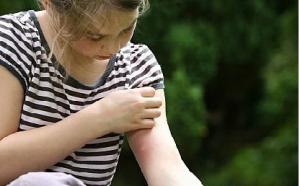 Tìm hiểu các nguyên nhân gây bệnh mề đay là gì?