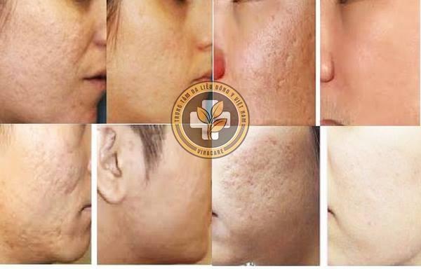 Vi phẫu biểu mô sinh học là phương pháp trị liệu da được giới chuyên gia Da liễu đánh giá cao
