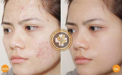 Hình ảnh trước và sau khi điều trị sẹo bằng công nghệ Vi phẫu biểu mô sinh học