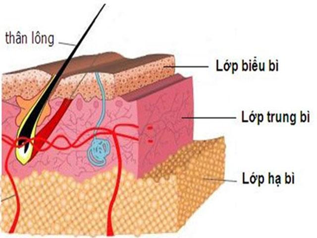 Trị sẹo bằng Phương pháp vi phẫu biểu mô sinh học có an toàn không?