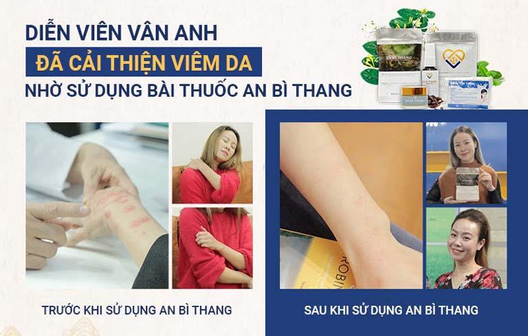 Diễn viên Vân Anh khỏi viêm da tiếp xúc sau 4 tháng điều trị