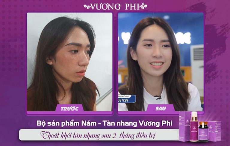 Kết quả điều trị nám, tàn nhang của Thanh Vân