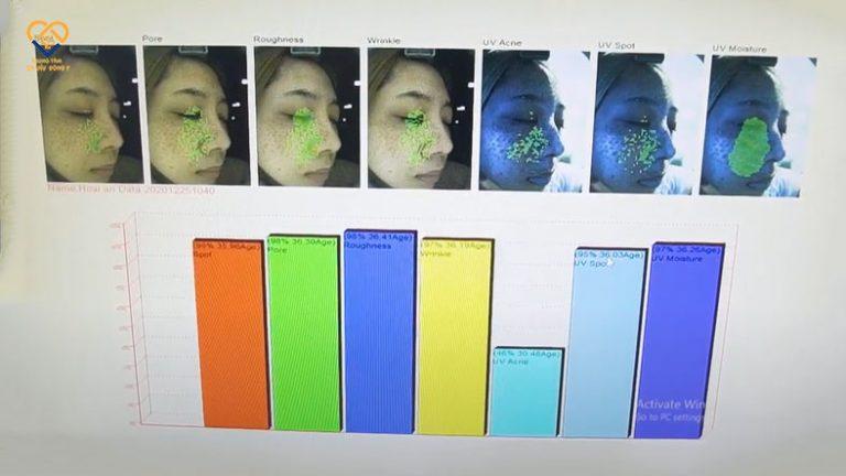 Kết quả soi da cho thấy tình trạng rối loạn sắc tố da tại lớp trung bì và hạ bì của Hoài An khá cao, ở ngưỡng 95
