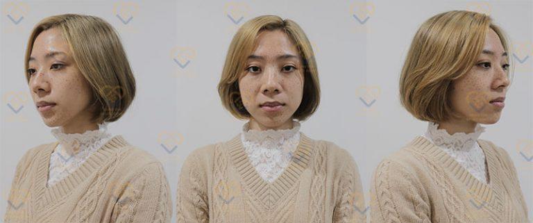 Tình trạng tàn nhang của chị Hoài An trước khi điều trị