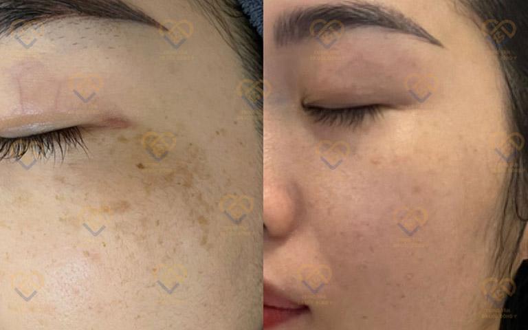 Người chị thân thiết của Hoài An đã điều trị tàn nhang thành công